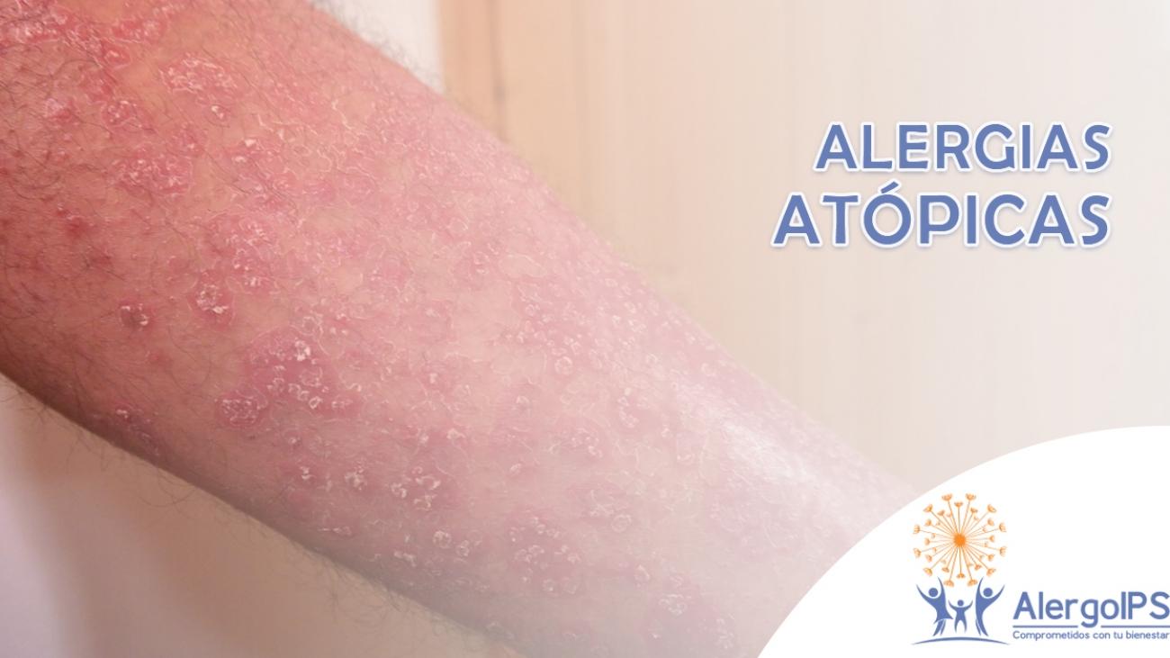 alergiasatopicas-alergoips