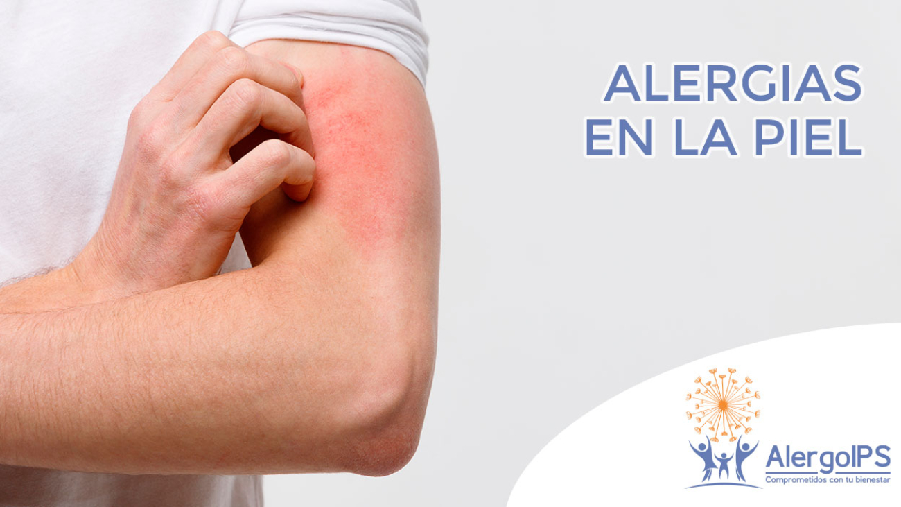alergiaspiel-alergoips